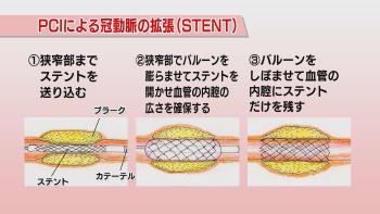 PCIによる冠動脈の拡張(STENT)
