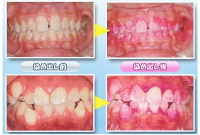 歯石=バイオフィルム 食べかすをバイ菌が分解してできた白いカス