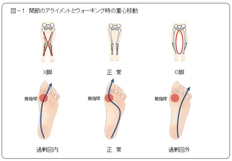関節のアライメントとウォーキング時の重心移動の画像