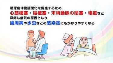 糖尿病合併症